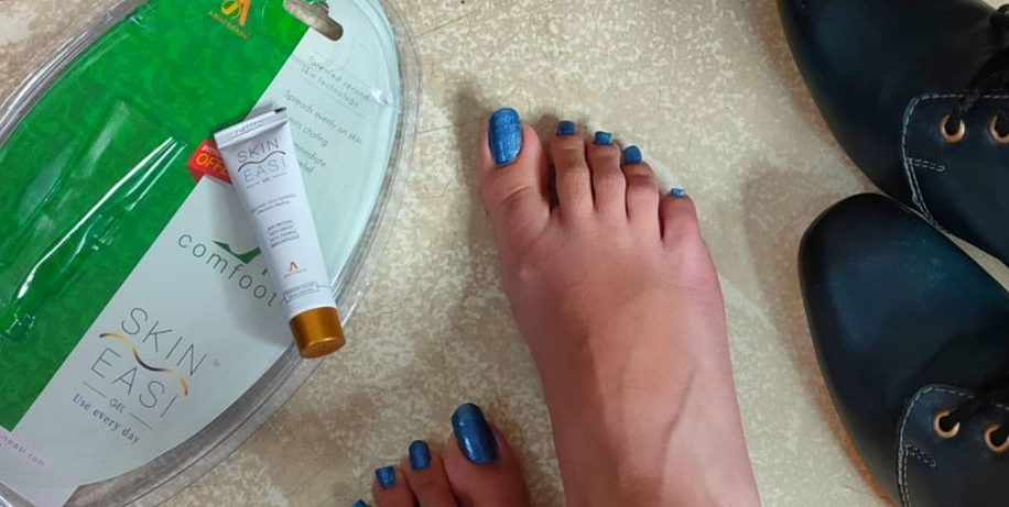 SkinEasi Comfoot Anti-Shoe Bite Gel -Amazing Foot Gel for Shoe Bite-By khushboo_shukla