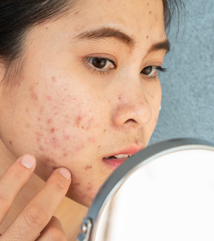 All You Need To Know About Fungal Acne