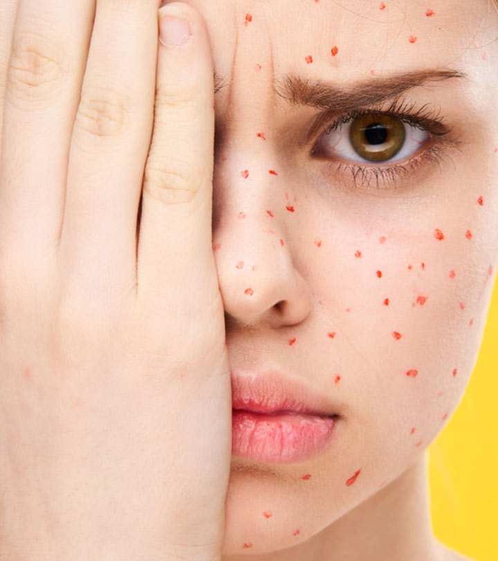 Home Remedies For Chicken Pox in Bengali