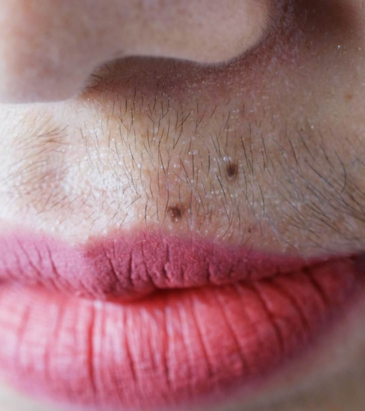How to Remove Upper Lip Hair at Home in Bengali