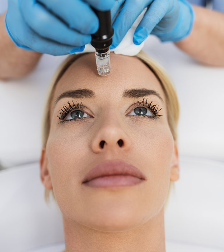 Microneedling Aftercare: Tips, Potential Side Effects
