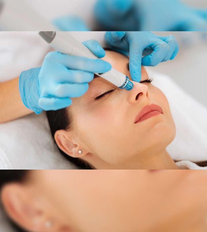 Dermalinfusion Facial: What Is It And How Does It Work?