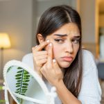 9 Steps To Prevent Acne Scarring If You've Popped Your Pimple