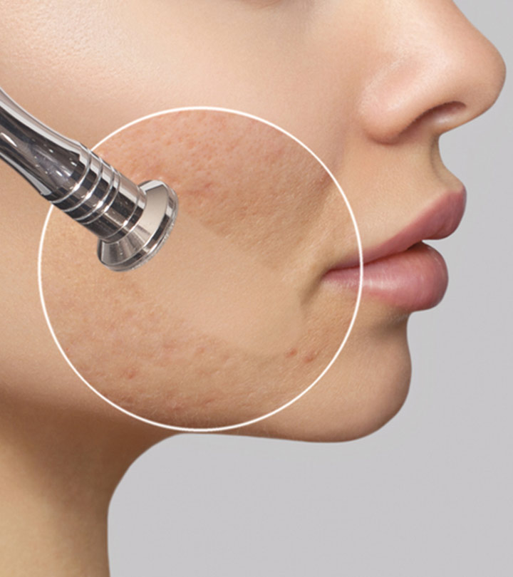 Microdermabrasion For Acne Scars: Everything You Need To Know