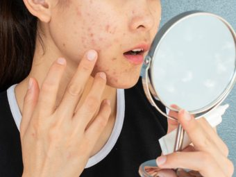 Nodular Acne Causes And How To Treat It