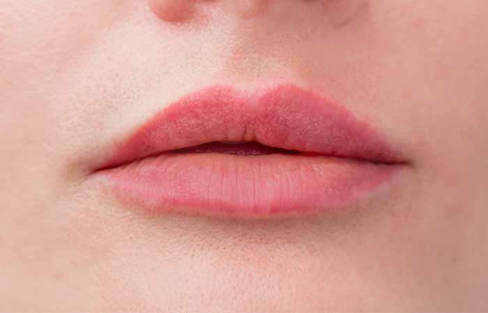 Risks Of Lip Fillers
