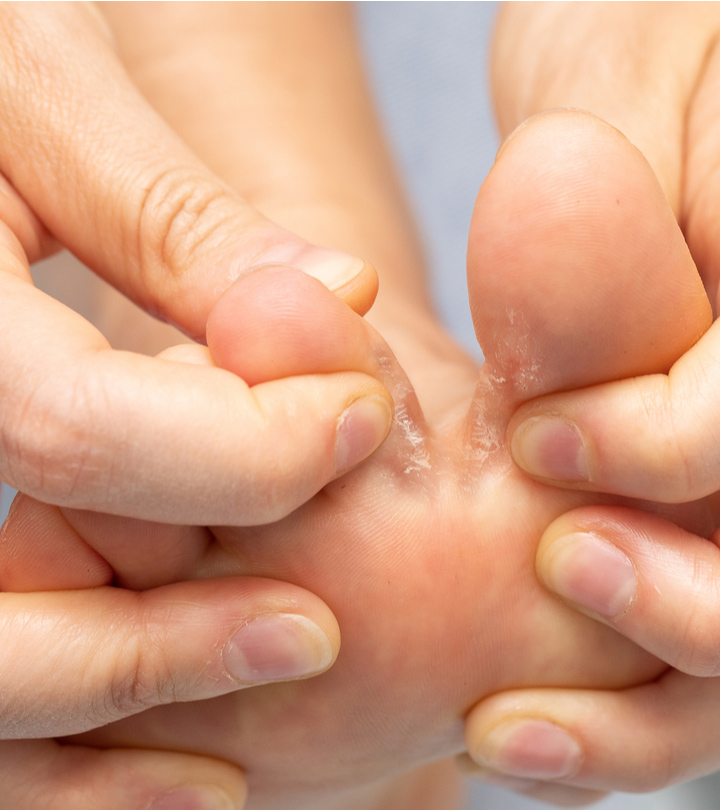 एथलीट फुट के कारण, लक्षण और इलाज – Athlete's Foot Causes and Symptoms in Hindi