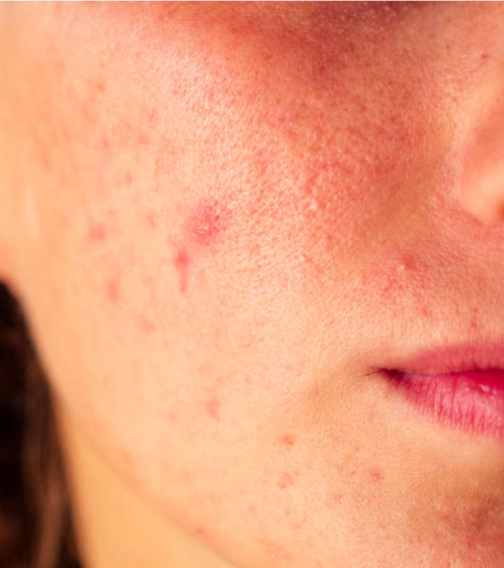 Everything You Need To Know About Acne Papules