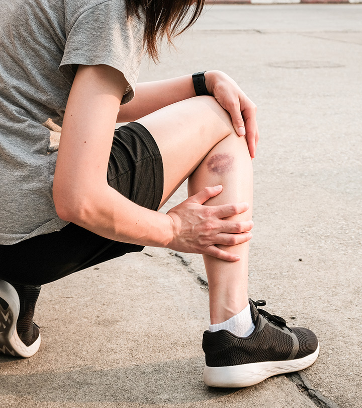Can Essential Oils Heal Bruises?
