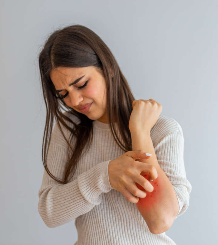 Coconut Oil For Psoriasis: How Does It Work?