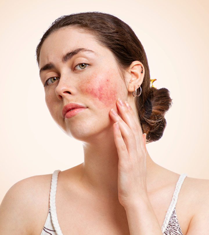 Everything You Need To Know About Skin Inflammation