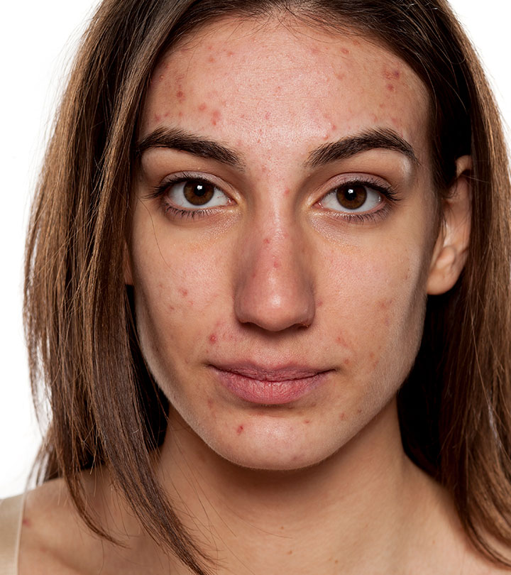 How Long Does Acne Last?