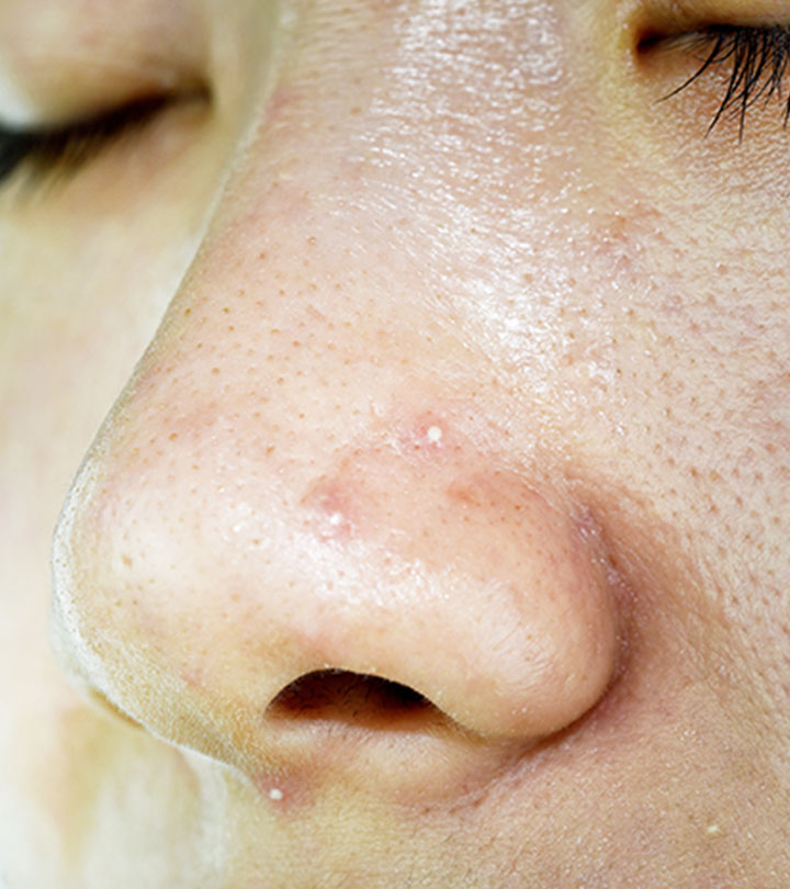 How To Get Rid Of Whiteheads On Nose: Causes And Treatment
