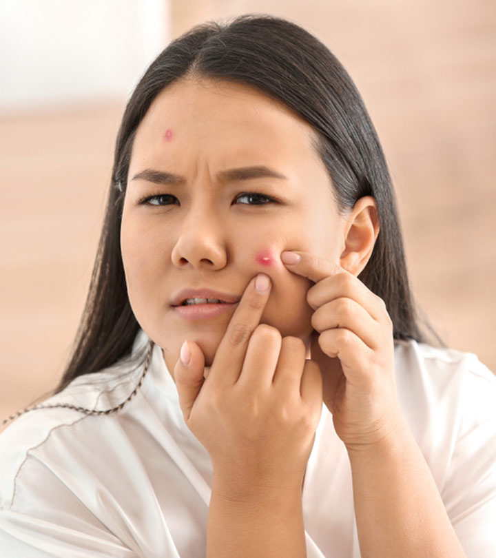 Period Acne: Learn How The Menstrual Cycle Affects Breakouts