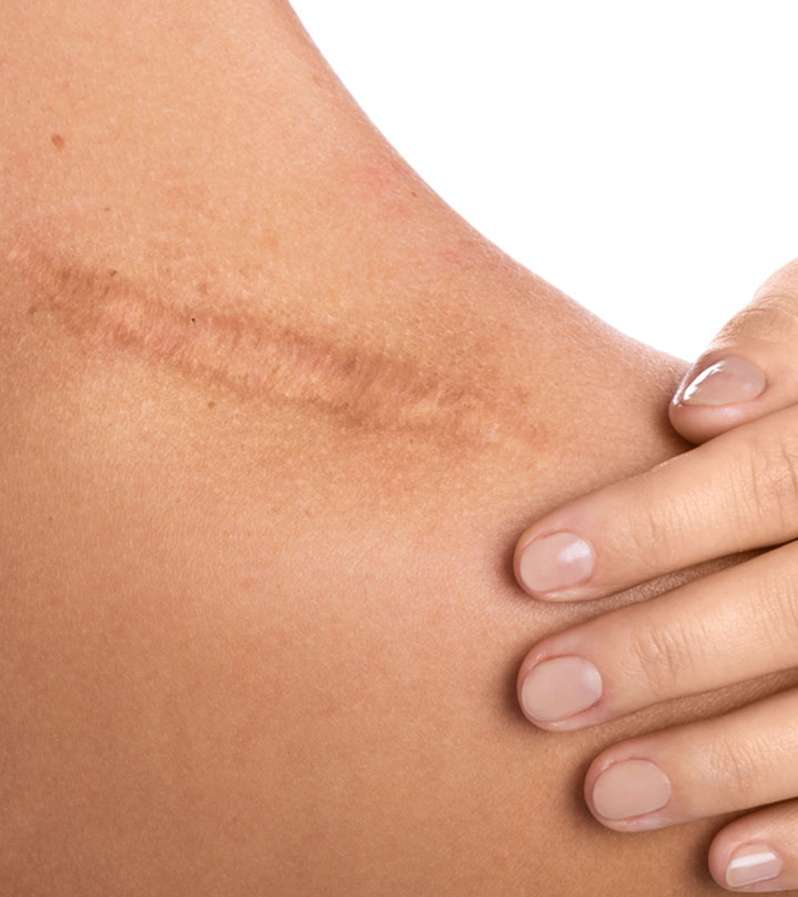 Scar Tissue: What Is It? How To Deal With It?