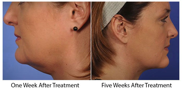 ThermiTight Treatment Before And After Pictures