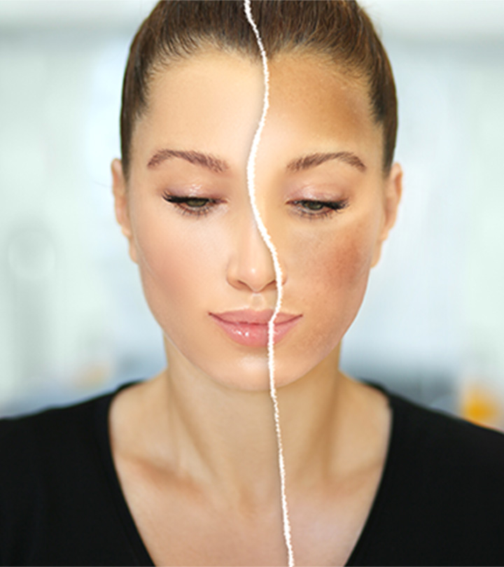 What Is The Difference Between Melasma And Hyperpigmentation?