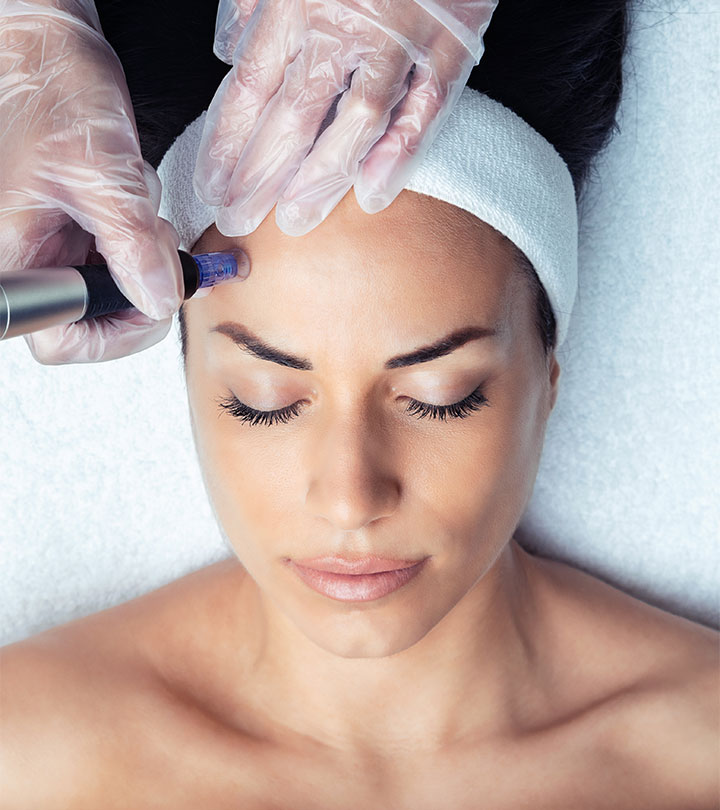 What Role Does Microneedling Play In Acne Scar Treatment