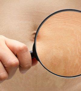 stretch-marks-abdomen-through-magnifying-glass