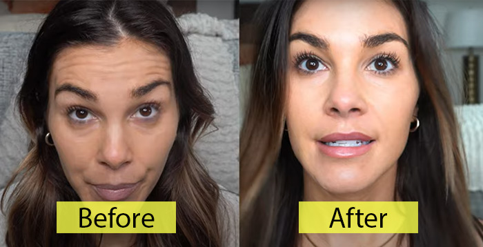 Dysport Vs. Botox Which One To Choose?