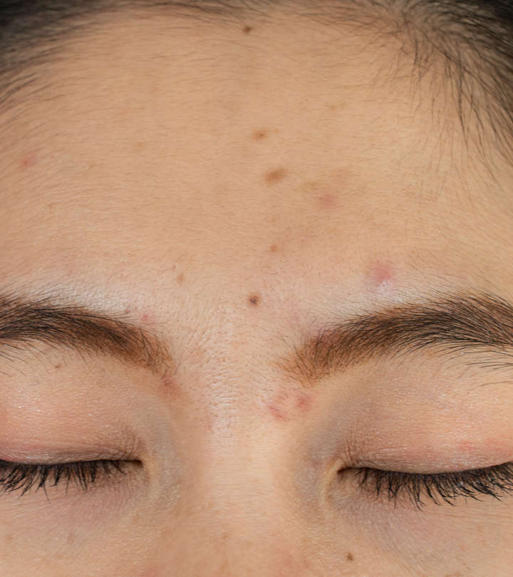 Everything You Need To Know About Acne Between Eyebrows