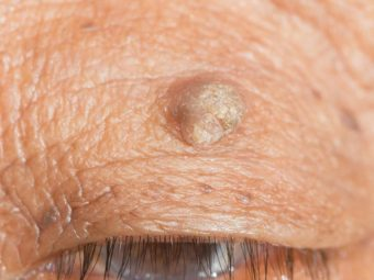 Eyelid Skin Tags Causes And Treatment