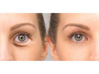 Home remedies For Eye Bags in hindi