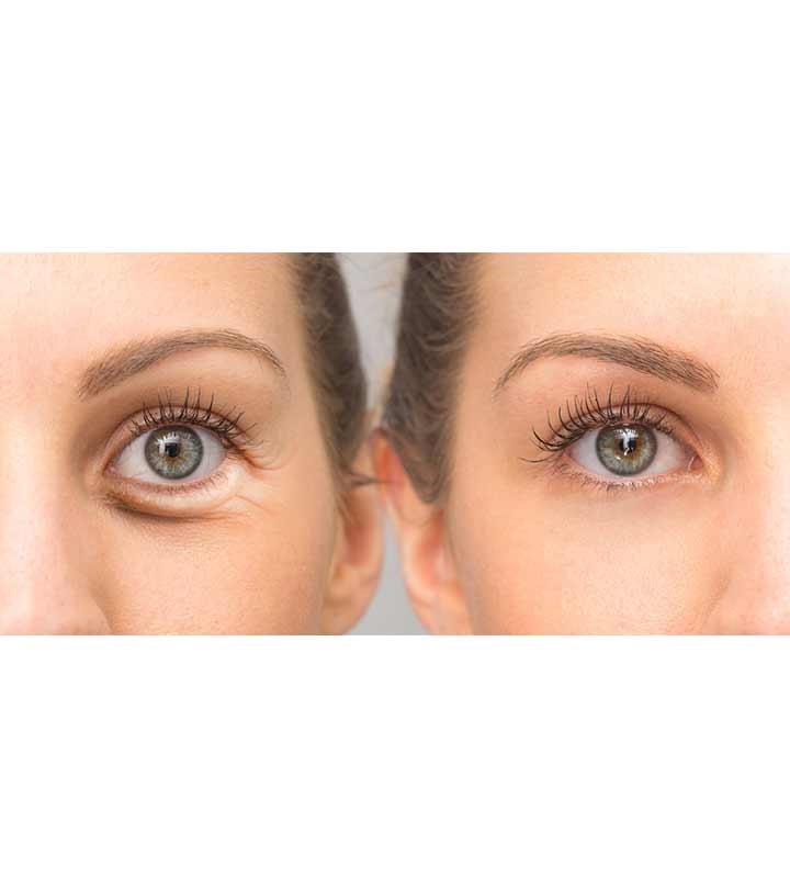 आंखों के नीचे सूजन के कारण, लक्षण और घरेलू इलाज – Home remedies For Eye Bags in hindi