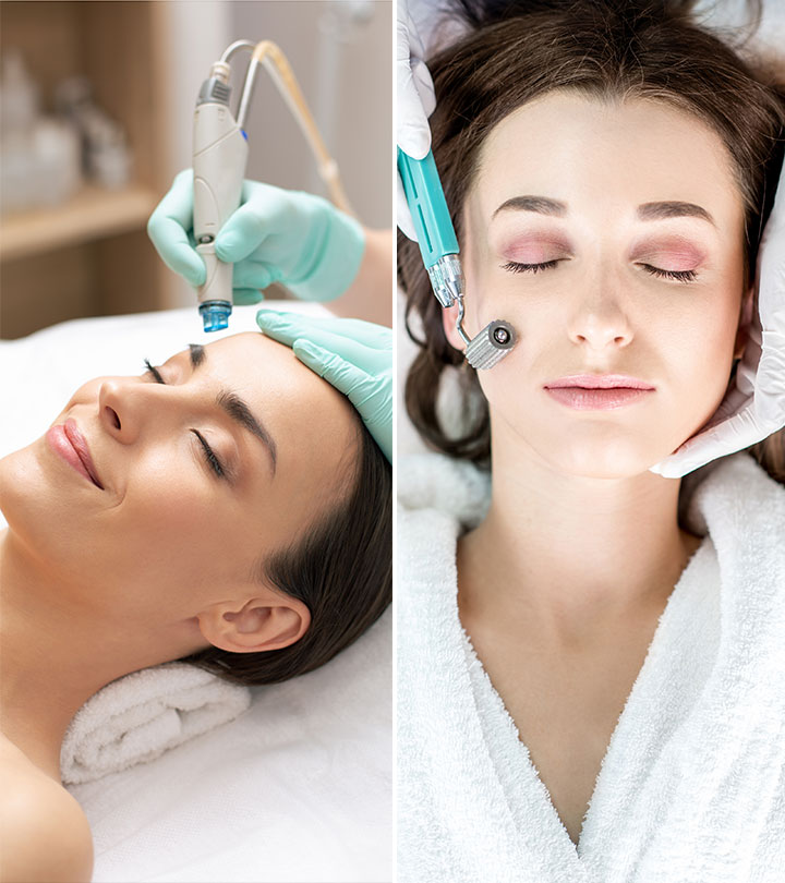 How Is Microneedling Different From Microdermabrasion?