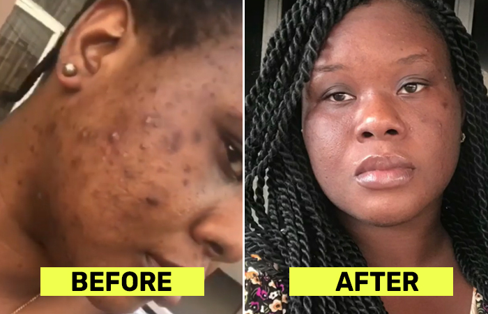 Is ACV Toner Suitable For All Skin Types