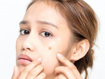 Is Clindamycin Good For Acne