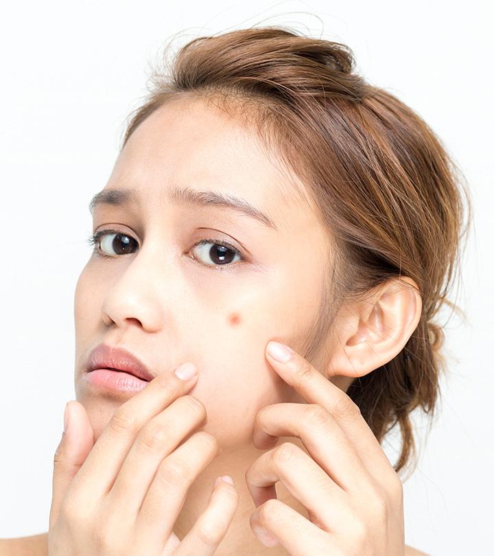 Is Clindamycin Good For Acne?