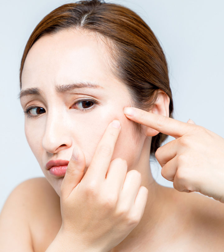 Scabs On Face: Causes, Home Remedies, And Prevention