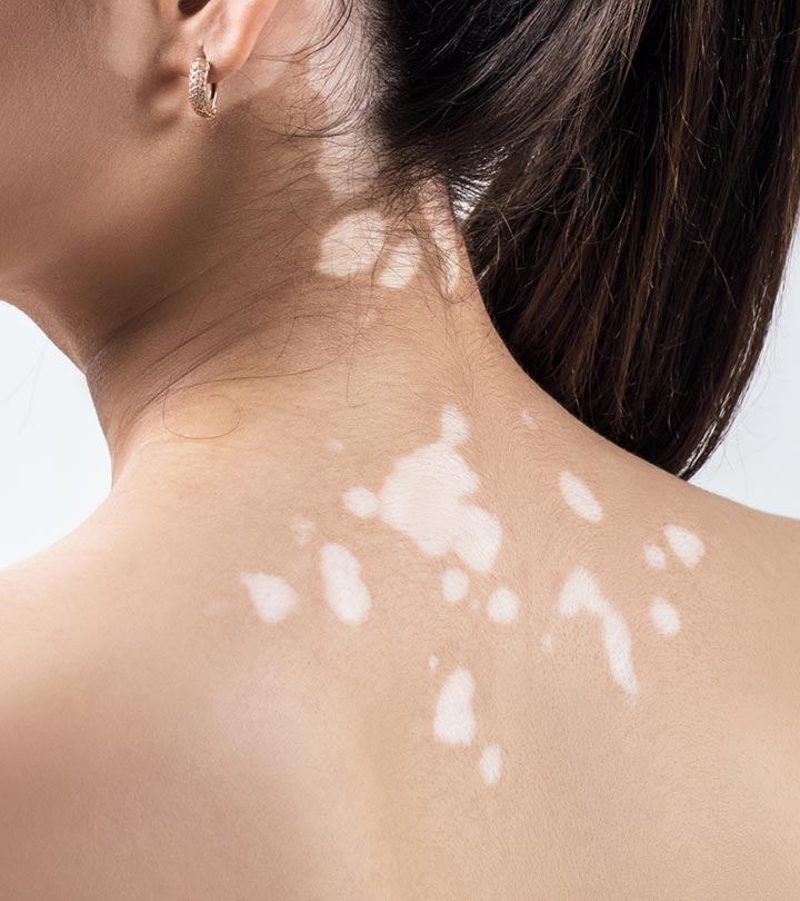 White Spots On Skin: Causes And Treatment Options