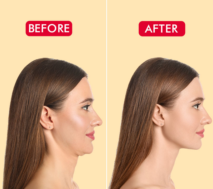 10 Neck Tightening Exercises To Get Rid Of Double Chin