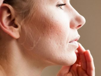 How To Get Rid Of Pitted Acne Scars Effectively